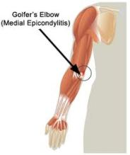 Medial epicondylitis medial elbow pain