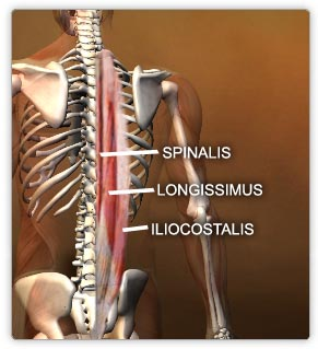 hunchback kyphosis posture