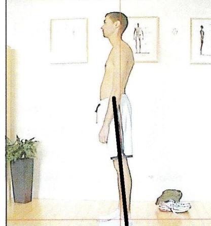 femoral anterior glide