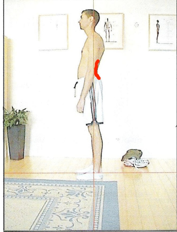 lordosis lower back arch lower back pain