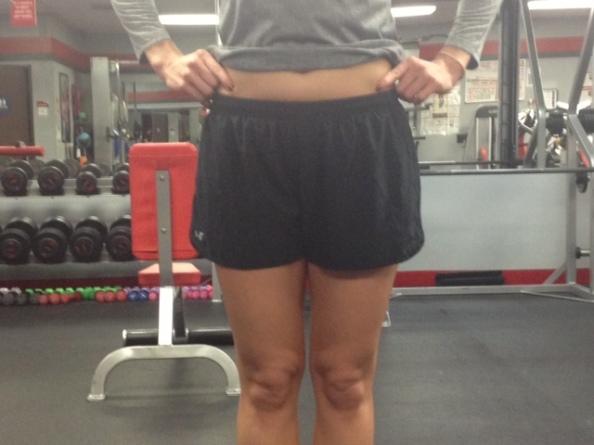 leg length discrepancy