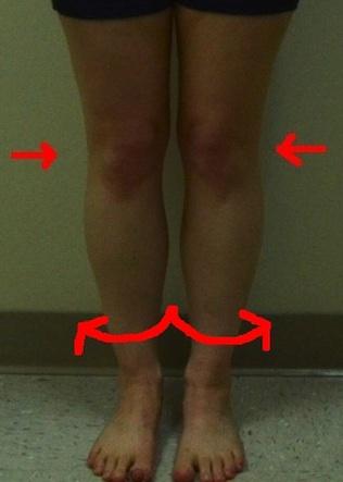 jennifer-front-less-quality-internal-rotation-knees-tibias-too 2