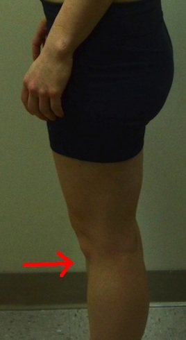 jennifer-knee-hyperextension 2
