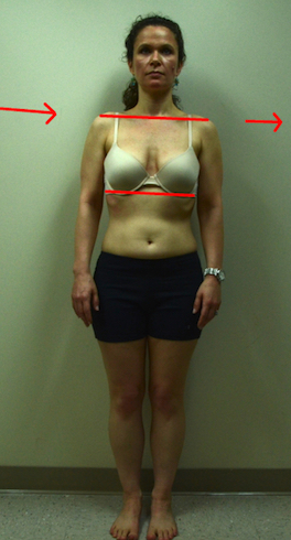 jennifer-s-front-abdominal-line-with-gravity-arrows 2