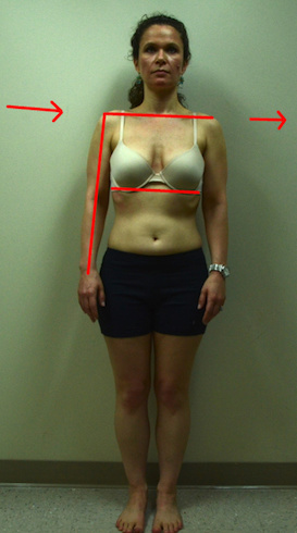 jennifer-s-front-abdominal-line-with-gravity-arrows-abduction-too 2