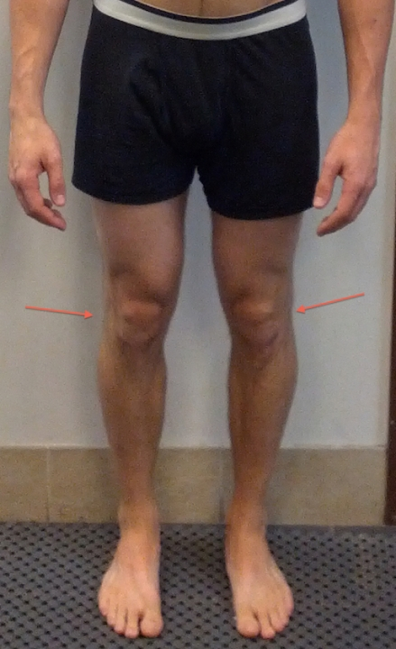 jeremy-front-knee-lines 2