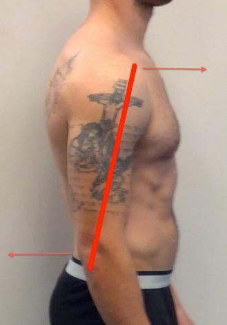 Jeremy side anterior glide lines