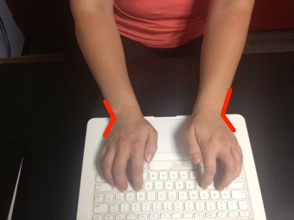 Typing wrists ulnar deviation with lines