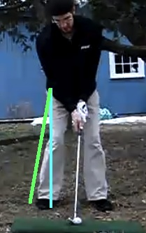 Chris golft set up right leg internally rotated STARTING point