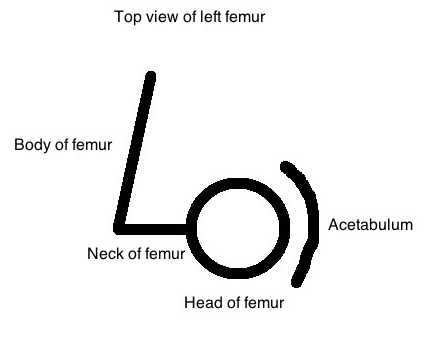 Femoral retroversion 1 with text with acetabulum