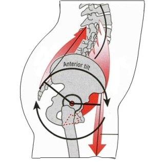 anterior pelvic tilt alignment
