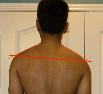 Neeraj Back with Shoulder Asymmetry Lines