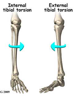 Rotation at the tibia