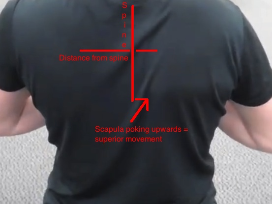 Scapular winging serratus issues with lines