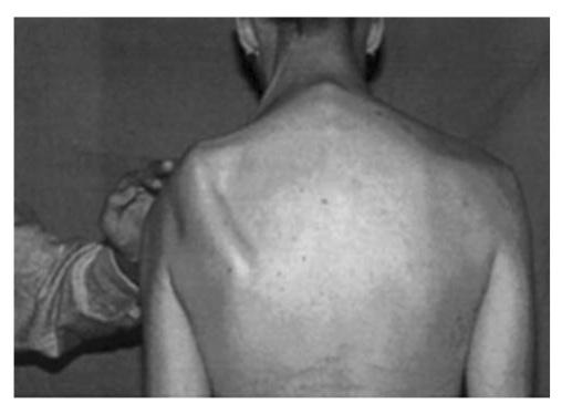 """From the paper: """"Notice the lateral displacement of the scapula with the superior angle more lateral to the midline than the inferior angle."""""""