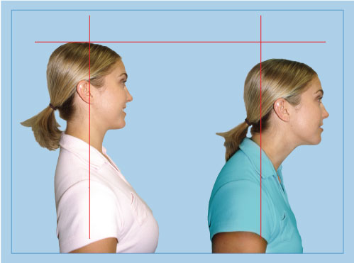 Forward head posture comparison with lines