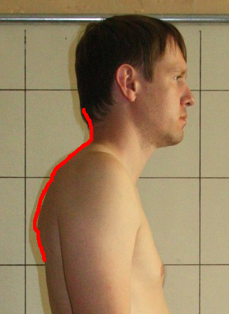Mikhail Right Side C and T Spine Outline