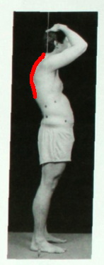 Swayback posture more lordosis thoracic flexion