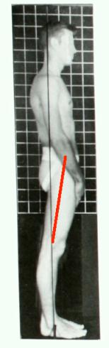 Swayback posture side hip extension line