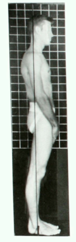 Swayback posture side