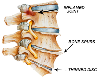 Reversing an arthritic spine, degenerative disc disease ...