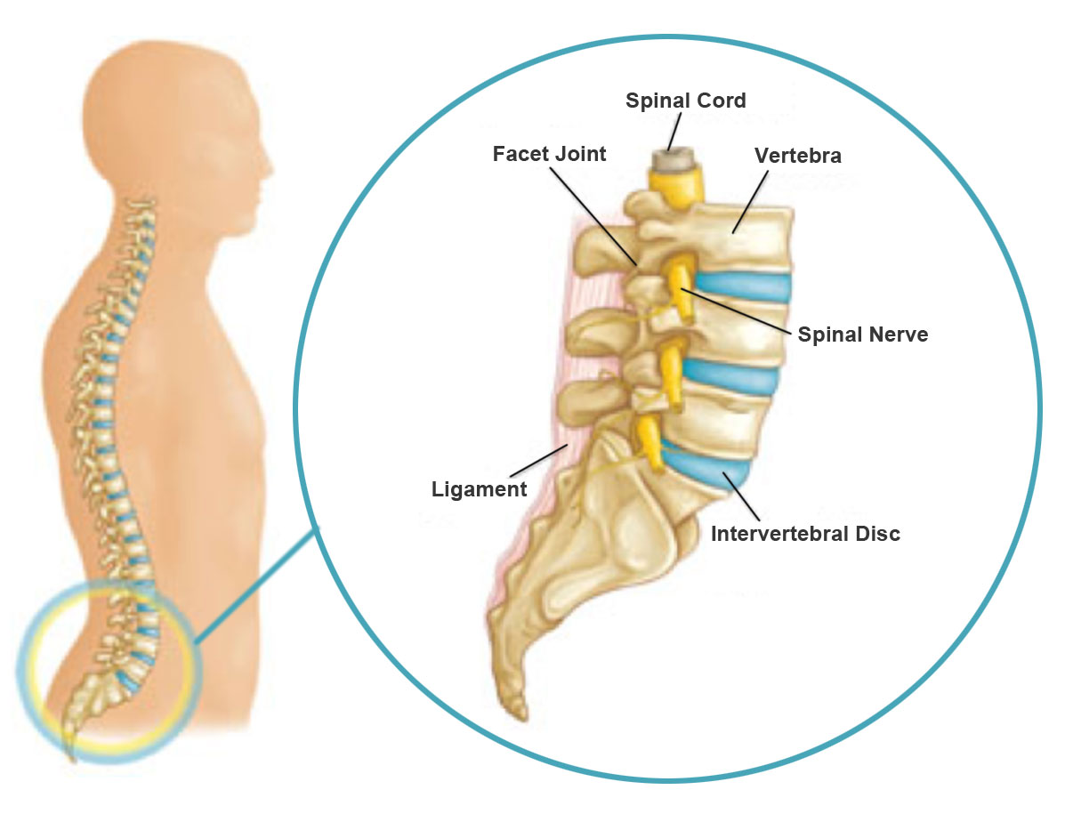 Image Result For Chronic Lower Back Pain Relief