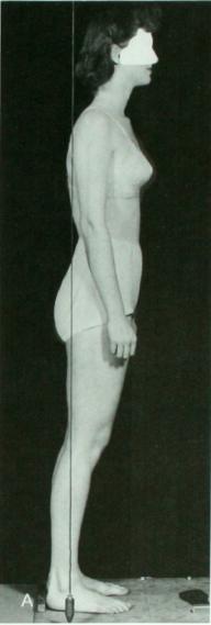 Forward body lean hip extension
