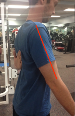 Scapular winging corrected arm 2 with line