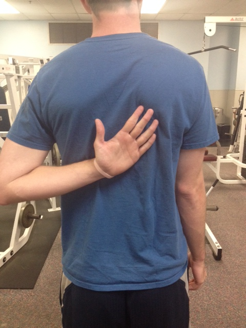 Scapular winging corrected back 1