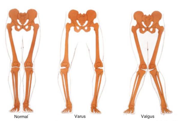 Knee alignments