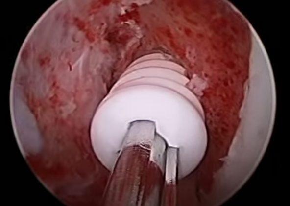ACL Surgery Screw 1