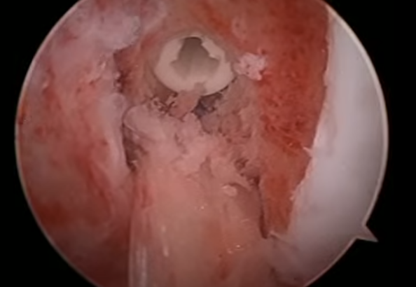 ACL Surgery Screw with graft