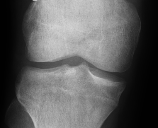 ACL X Rays Close Up Right 1
