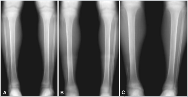 Fibula removed x rays 2