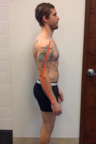 Jeremy Side elbow flexion lines