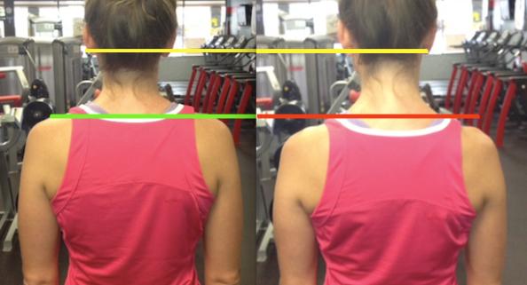 Shoulder Comparison Level Ears Unlevel Shoulders