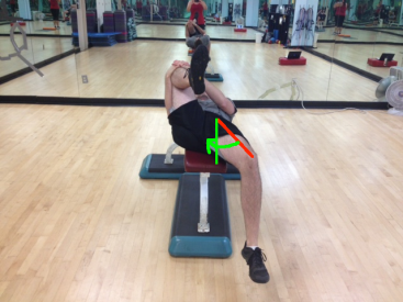Supine Hip Extension Abducted Thigh (Me) with two lines and arrow