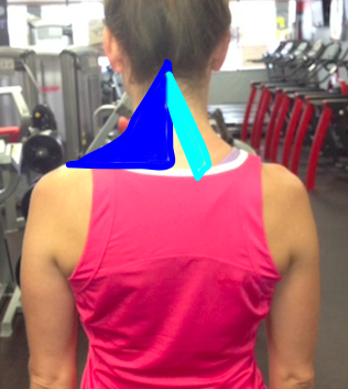Upper Trap and Levator Scapulae Shaded