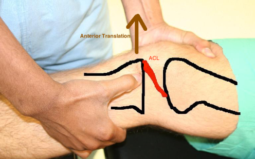 ACL Lachman with drawing and anterior translation