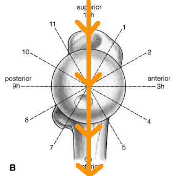 Femoral neck clock with gravity line