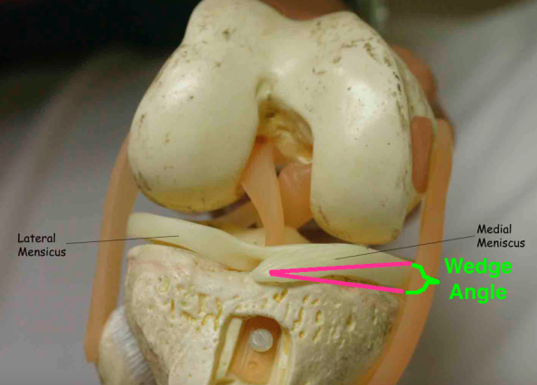 Knee meniscus model with lines
