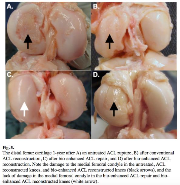 Arthritis after different ACL surgeries 1