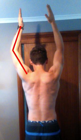 Angus asymmetric arm raise overhead after surgery arm can't straighten