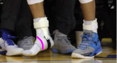 Stephen Curry ankles close up with line