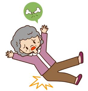 falling-on-hip-bone-density