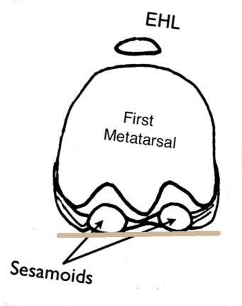 first-metatarsal-sesamoid-bones-flat-ground-hallux-valgus