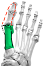 hallux-valgus-bones-movement-closer-up