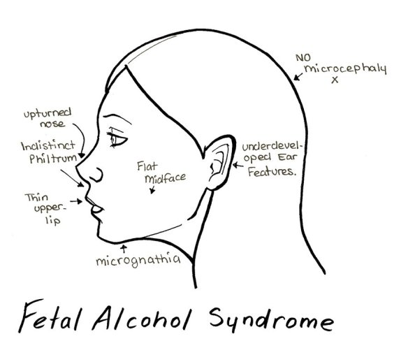 fetal alcohol syndrome changes in face